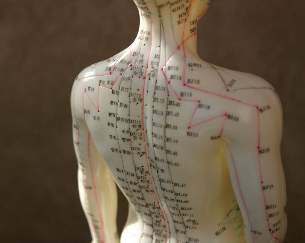 Acupuncture trigger points